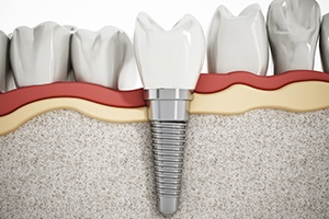 Springfield dental implants Animation of implant crown