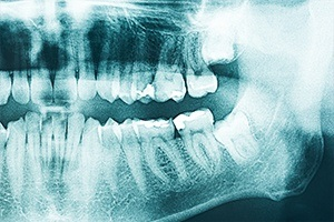 X-rays of smile
