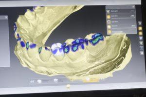 digital teeth rendering